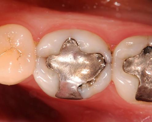 Amalgama dentaria mercurio